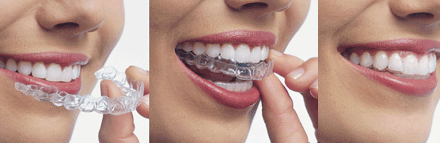Invisalign clear removable aligners